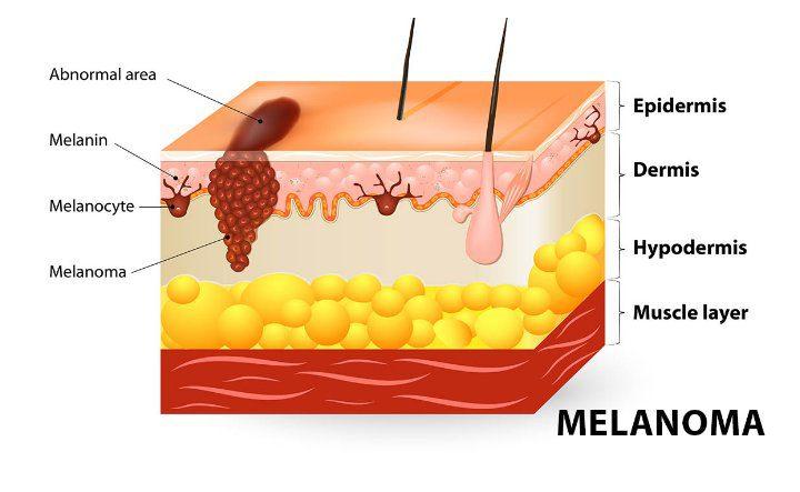 Fundación Piel Sana de la AEDV / El cáncer de piel