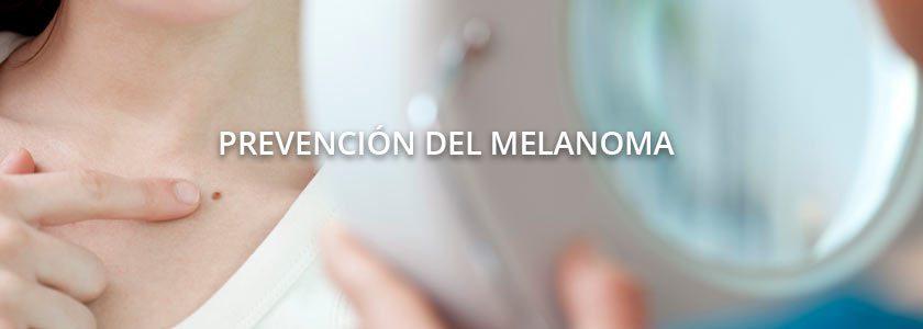 Prevenir el cáncer de piel, revise sus lunares una vez al mes