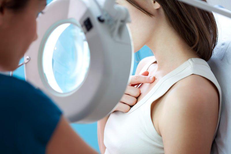 Para prevenir el cáncer de piel, revise sus lunares una vez al mes