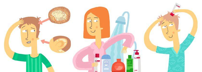 Descubre trucos sobre la psoriasis en el cuero cabelludo - Tecnosa