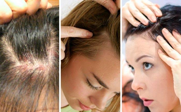 El en de tipos cabelludo dermatitis cuero