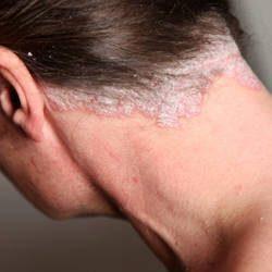Descubre trucos sobre la psoriasis en el cuero cabelludo